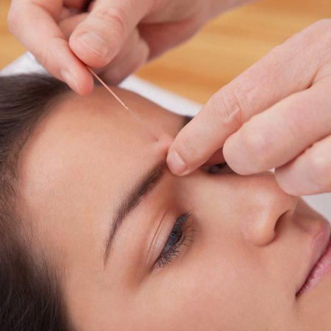 acupunture allergie
